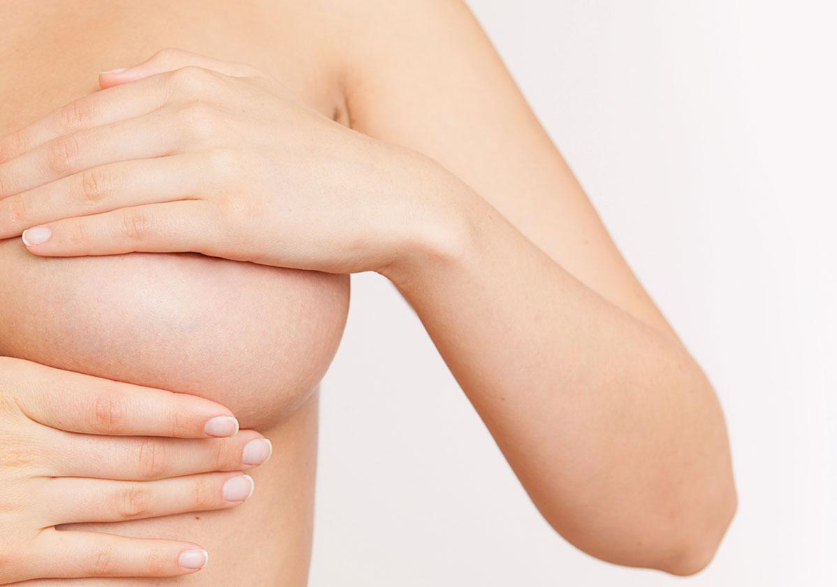 augmentation de la taille des seins montpellier