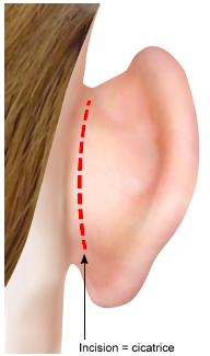 chirurgie oreilles decollees herault