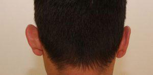 chirurgie esthetique oreilles montpellier