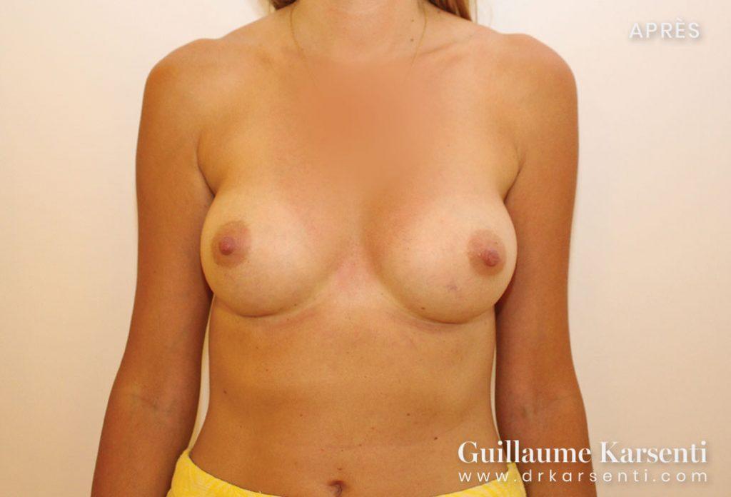 correction de la poitrine montpellier