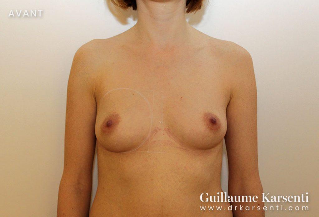 protheses mammaires sur montpellier