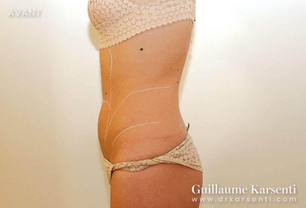 intervention chirurgie esthetique a montpellier