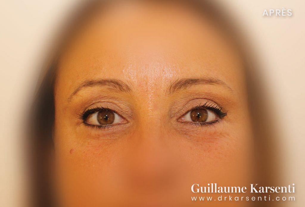 chirurgie des yeux montpellier
