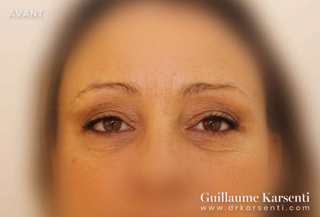 operation des yeux montpellier