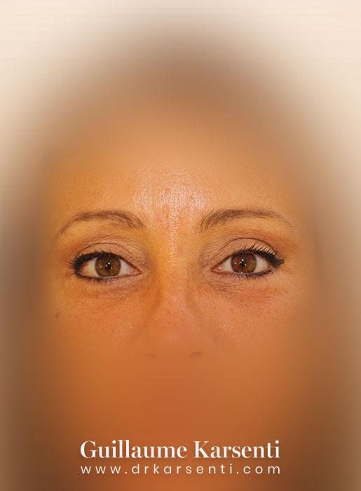 chirurgie plasticien montpellier
