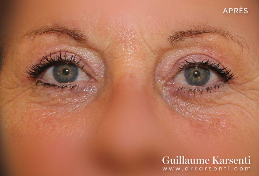 chirurgie du visage herault