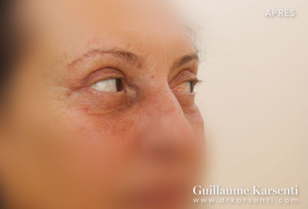 blepharoplastie a montpellier
