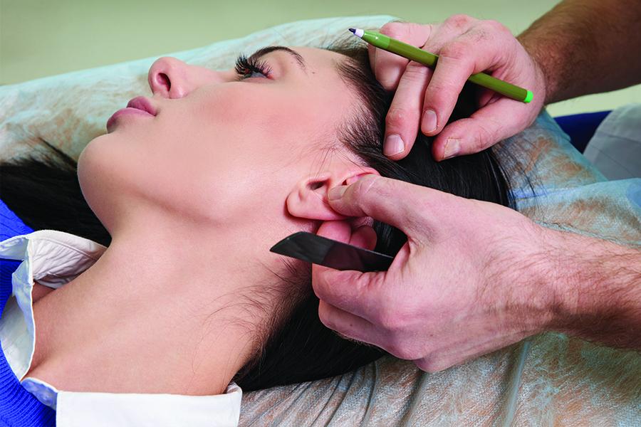 chirurgie esthetique visage montpellier