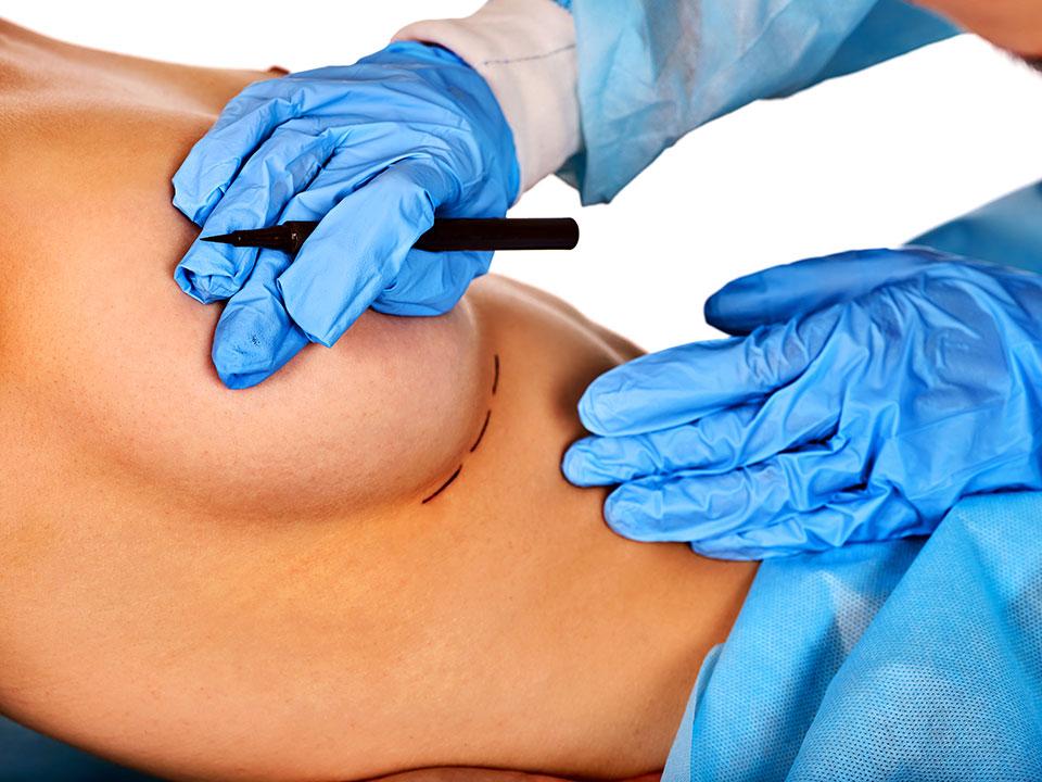 chirurgie des seins montpellier